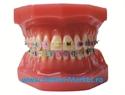 Imaginea Model dinti ortodontie